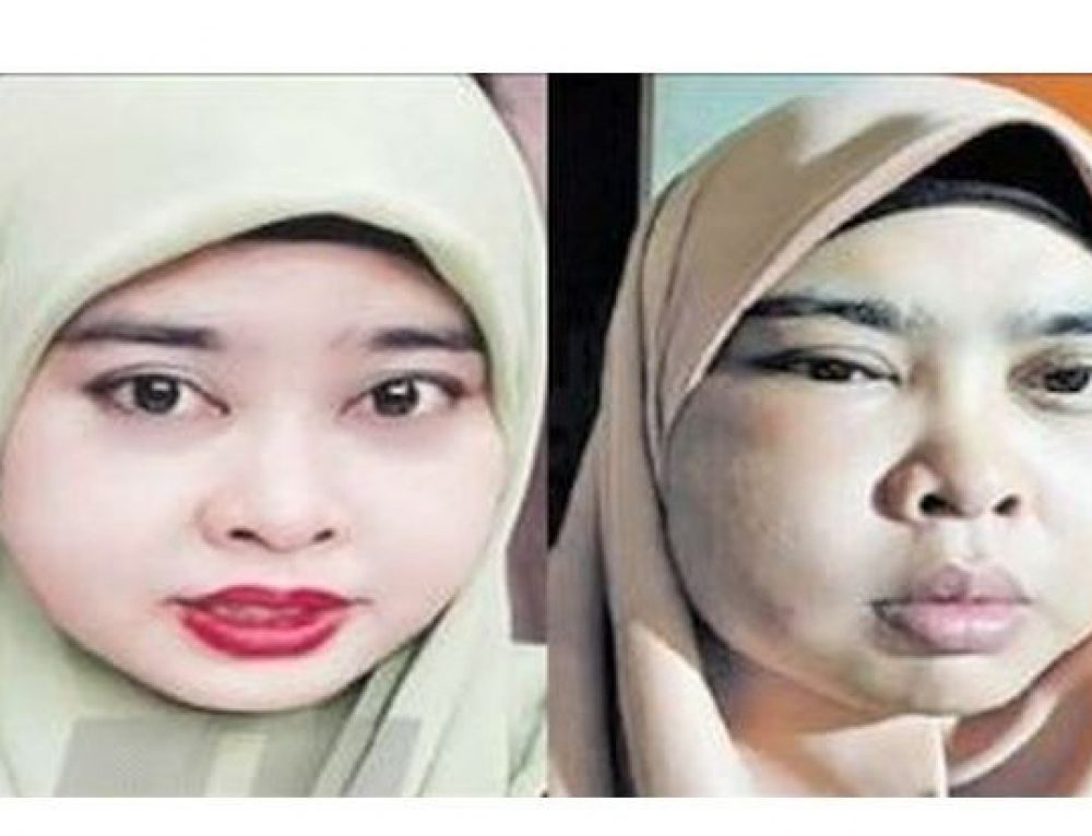 Woman's face swells up after using online beauty products