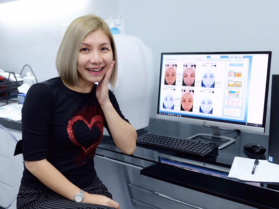 Review by Elana Khong:  PRP and Carbon Peel Laser @ Idealyst, KL Trillion